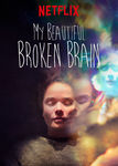 My Beautiful Broken Brain | filmes-netflix.blogspot.com